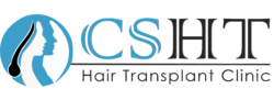 cshairtransplant